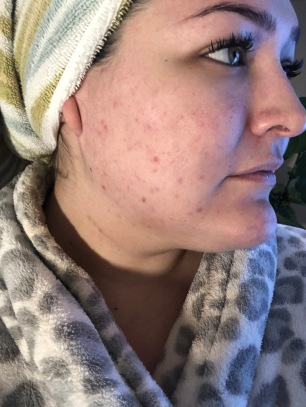 Right side of my face, immediately before first appointment